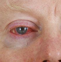 Abbildung bindehautentzündung konjunktivitis